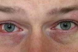 Глаз Алмаз обладает иммуномодулирующим действием