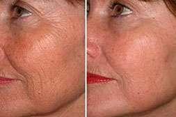 Adapalex выравнивает глубокие морщины и омолаживает кожу
