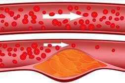 Артебио снижает холестерин, растворяет бляшки и тромбы.